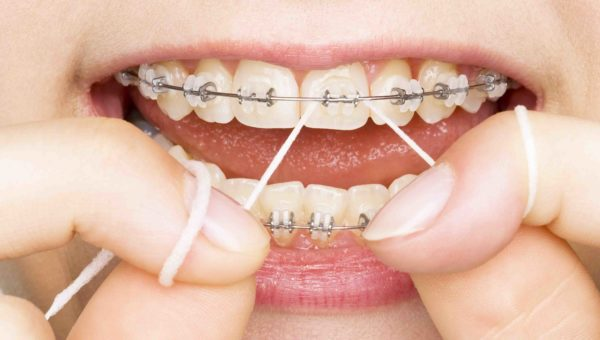 Misconceptions About Dentures That You Should Know Earlier than Visiting Dentist