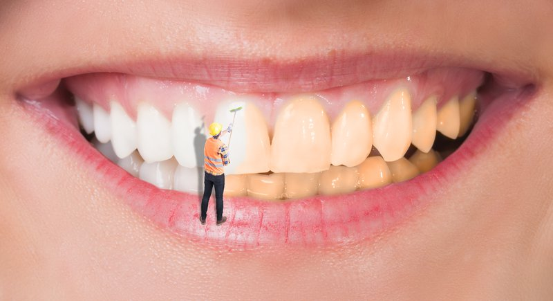 Teeth cleaning vs Teeth Whitening: What is the Difference?