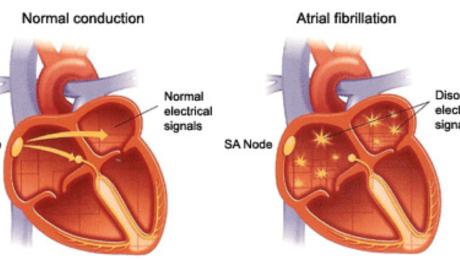 TREATMENT OPTIONS FOR ATRIAL FIBRILLATION