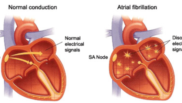 TREATMENT OPTIONS FOR ATRIAL FIBRILLATION